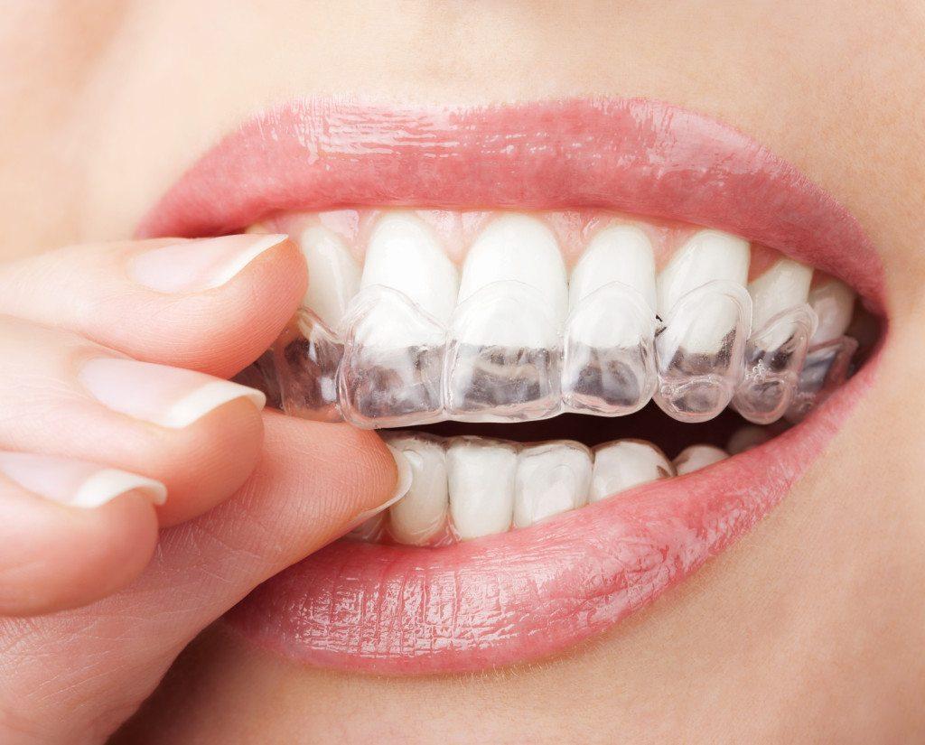 יישור שיניים באמצעות קשתיות שקופות
